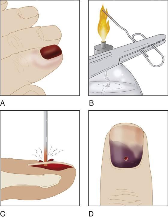 kalau jari tersepit pintu lakukan langkah ini untuk kurangkan kesakitan vanilla kismis kalau jari tersepit pintu lakukan